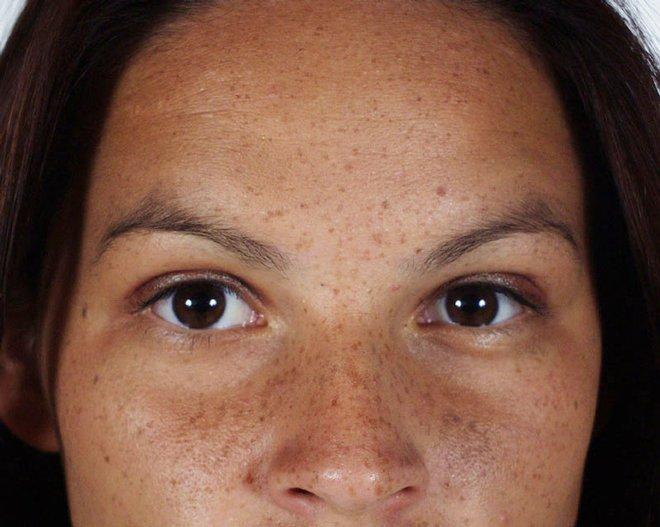 zabiegi kosmetyczne kraków